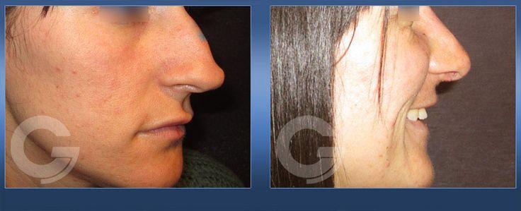 Rinoplastia. Caso Real 2 #Rinoplastia #CirugiaEsteticaNariz  http://drcruzgimeno.com/cirugia/galeria-cirugia-de-la-nariz-rinoplastia/