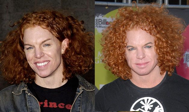 "10 Worst Celebrity Plastic Surgery Mishaps - Scott ""Carrot Top"" Thompson, the red-haired comedian, is no stranger to ""Top 10"" lists of horrifying plastic surgeries.  Thompson has undergone an eyebrow lift, along with Botox injections, lip plumping and laser peels, which is evident due to his sudden lack of freckles."