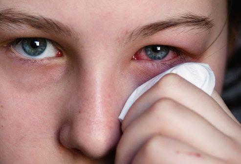 Jornal de Saúde: Conjuntivite alérgica: especialista fala sobre dia...