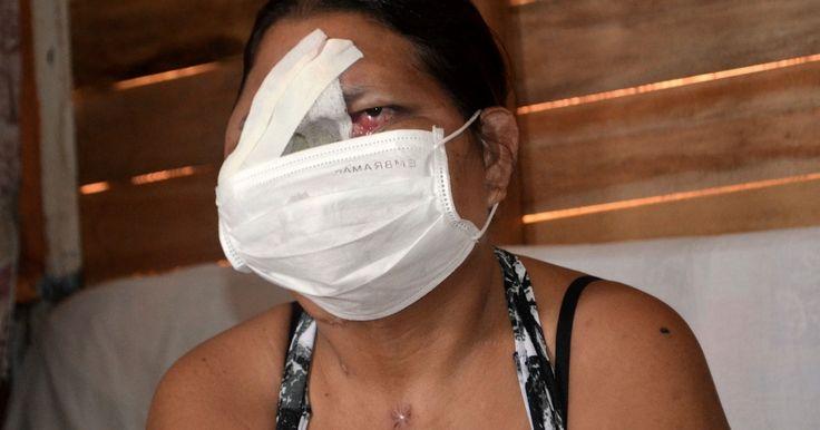 Mulher perde boca, nariz e um olho aguardando por cirurgia no Amapá