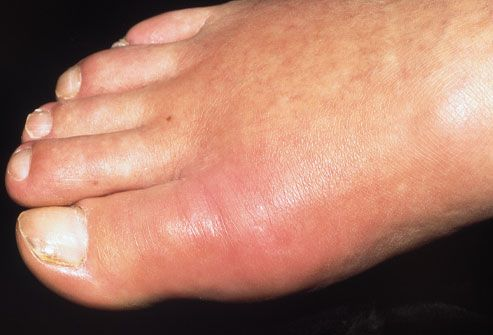 Common Foot Problem Pictures: Corns, Callouses, Blisters, Bunions, and More