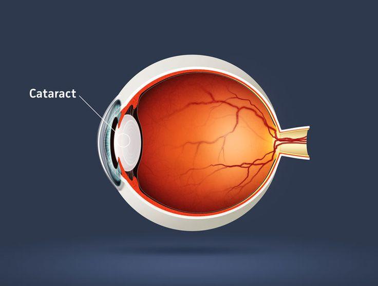 Representación de cataratas en el ojo humano.