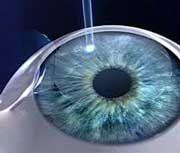 Lacirugía láser ocularconsiste en sustraer tejido del estroma corneal para modificar la potencia del globo ocular y así, lograr un sistema visual perfecto sin necesidad de usar gafas. Cirugía láser ocular: Tipos Queratectomía fotorefractiva (PRK)  Sirve para corregir la miopía, hipermetropía y astigmatismo.