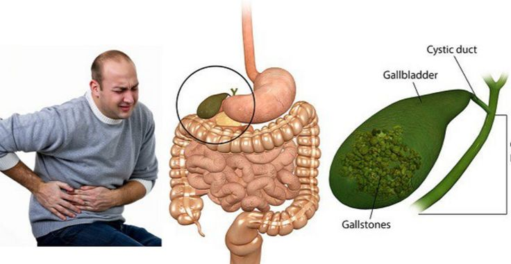 Gallstones are made of cholesterol and salts that form in the gallbladder, a little pear-shaped organ underneath the liver that stores bile. Bile ducts are the tiny tubes that carry bile — a liquid that helps the body digest fats … Read More