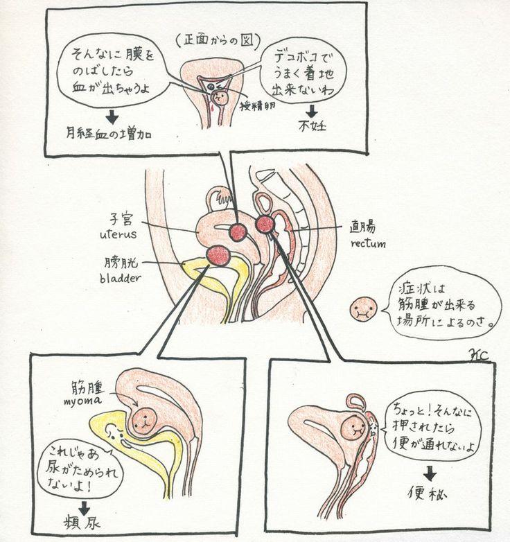 子宮筋腫(しきゅうきんしゅ)
