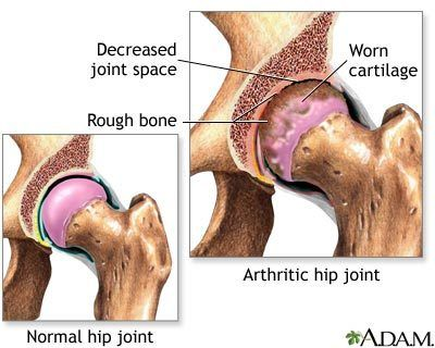 Healthy hip joint and arthritic hip joint.