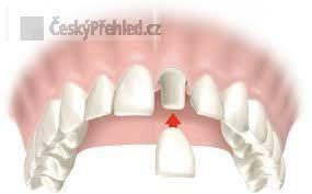 Bolesti mrtvých zubů pod korunkou