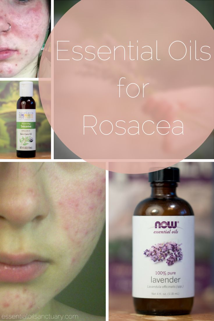 Learn about 9 Essential Oil Based Recipes for treating Rosacea and preventing future flare ups.