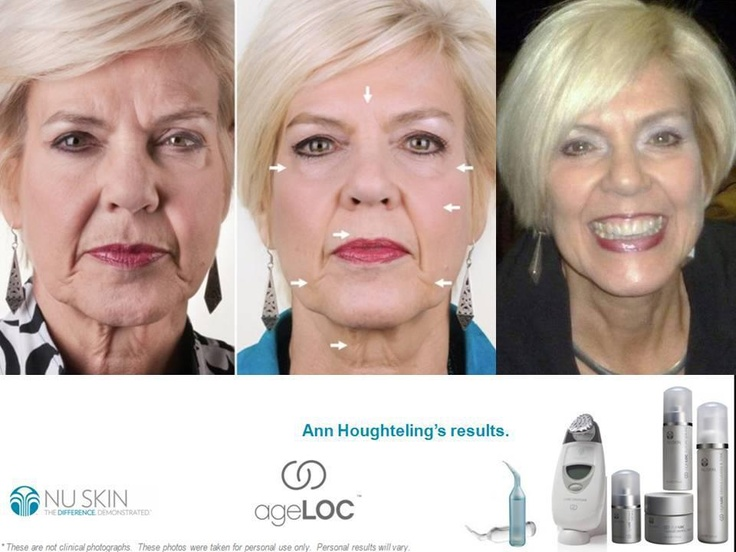 Before & After.....with great results! If you want to know more please contact me: info@stopstarosci.pl You can buy product on www.nuskin.com and if you register with NuSkin distributor's ID you can get wholesale price (-30%). You can use mine if you wish PL3302983, I will guide you and help find the best product suitable for you.