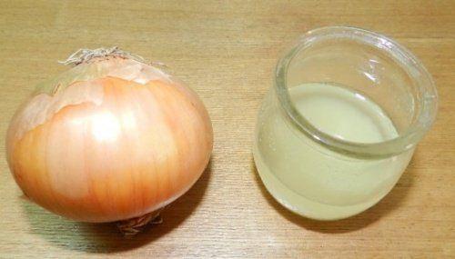 Remédio natural de cebola e vinagre branco para eliminar os calos dos pés