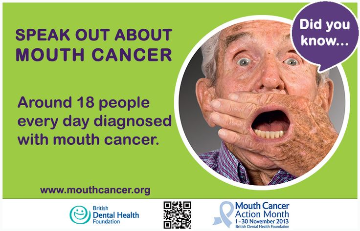 Mouth Cancer Action Month Fact Card: Around 18 people every day diagnosed with mouth cancer. Did you know: http://www.mouthcancer.org/page/facts-and-figures