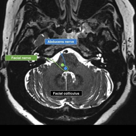 Facial nerve anatomy mri
