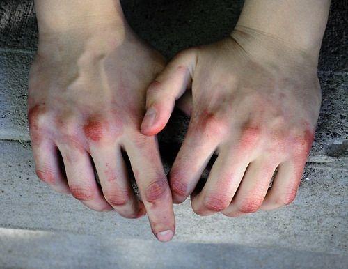 bruised hands