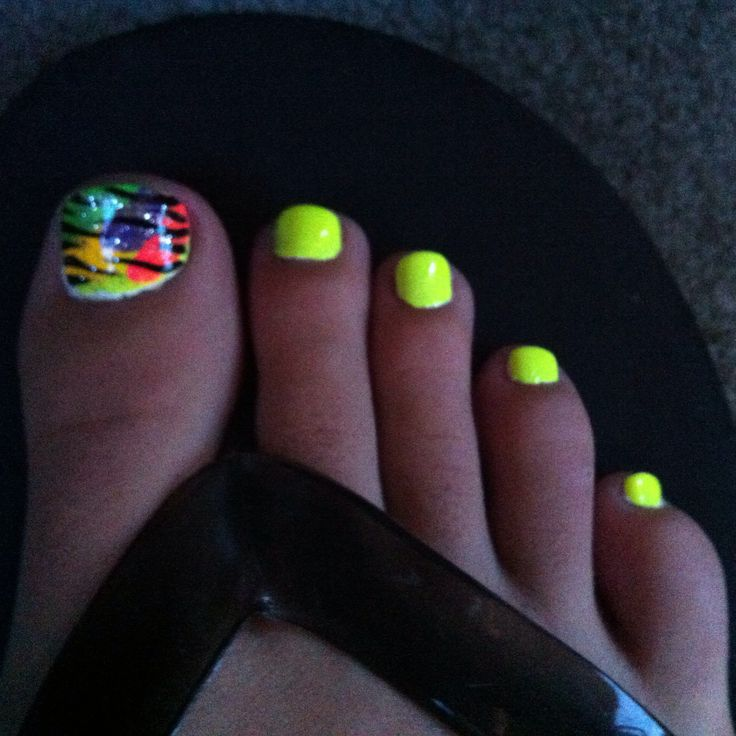 Toe nail design bright yellow! Perfect for summer!