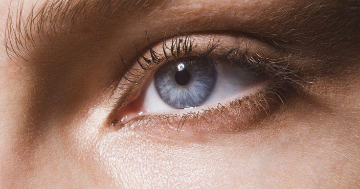 Cómo sacar arena de tu ojo. Tener arena en tu ojo puede ser una experiencia dolorosa que podría provocar cortes en tu ojo (abrasiones corneales) o una infección ocular. Un día ventoso o un incidente al lanzarte a la arena en la playa puede introducir arena en tus ojos, y la correcta administración de los primeros auxilios es esencial para disminuir la posibilidad de una ...