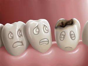 Όπου κρίνεται απαραίτητο, και μετά από συζήτηση με τους γονείς, τοποθετούμε προληπτικές εμφράξεις οπών (sealants) και σχισμών για την αποφυγή τερηδονισμού των μασητικών επιφανειών των οπίσθιων δοντιών.