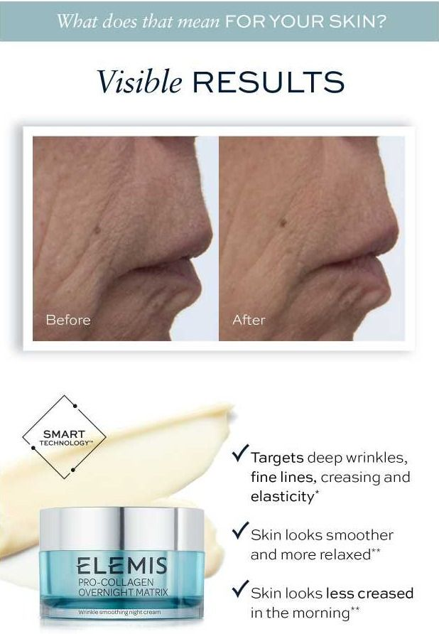 Target Deep Wrinkles With Pro Collagen Overnight Matrix Skincare Anti Ageing Before And After On Anti Aging Foundation Deep Wrinkles Anti Aging Skin Products