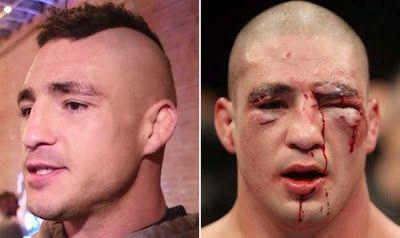 Visages de combattants de lUFC avant après combat   visages de combattants de l ufc avant apres combat 11