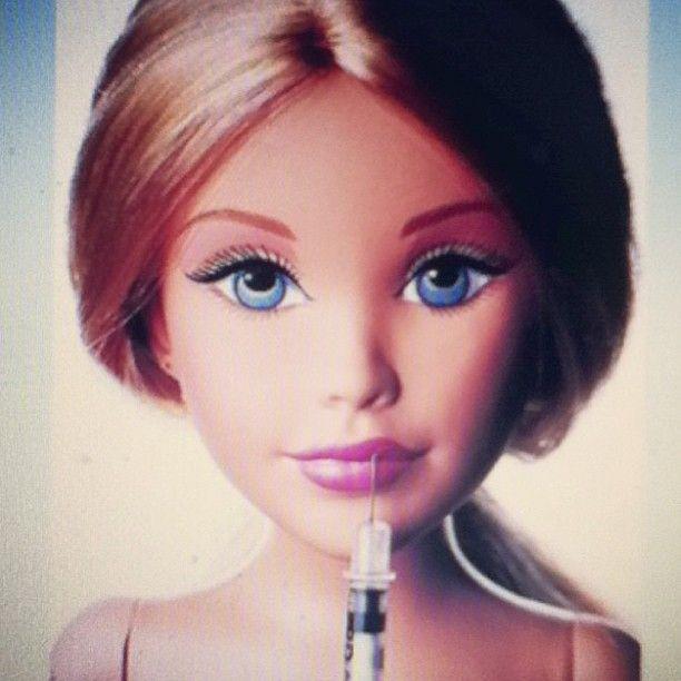 filler barbie botox