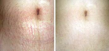 Derma Roller Before And After  Use for pigmentation, scars, big pores, wrinkles, stretch marks, lip plumping