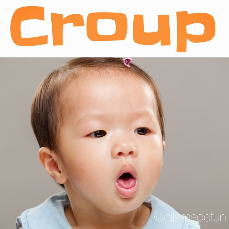 1000+ ideas about Croup on Pinterest | Ear Infection, Burn ...
