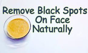 How to Get Rid of Black Marks on Face