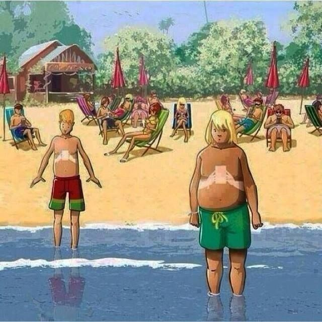 The tan-lines of the next generation. - Imgur