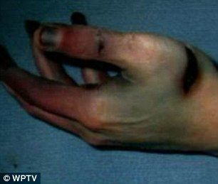 Fighting back: Stab wounds on Travis Alexander's hands show that he tried to defend himself as Jodi Arias attacked him.