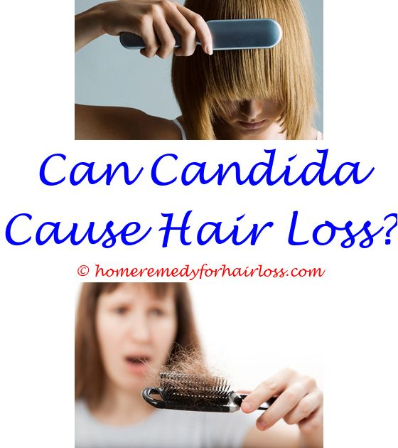 birth control pills and female hair loss - natural progesterone side effects hair loss.aloe vera for hair loss forum sleep apnea hair loss low cholesterol and hair loss 9520784873