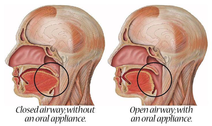 airway dental에 대한 이미지 검색결과
