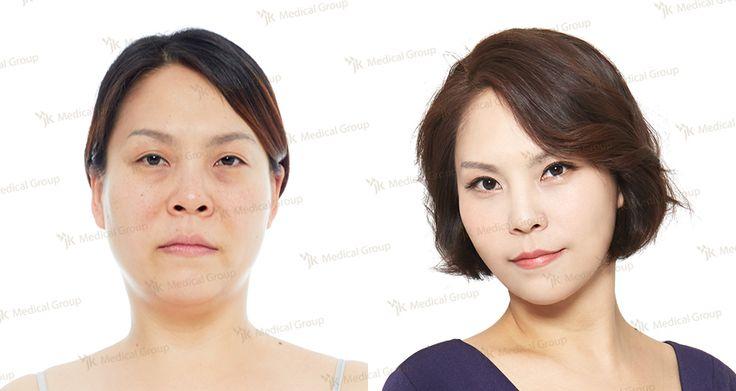 FACIAL LIPOSUCTION (VASER),Double eyelid surgery