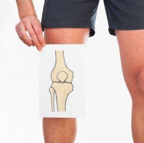 Vitamin K Deficiency Linked to Knee Osteoarthritis (OA) } Institute for Better Bone Health