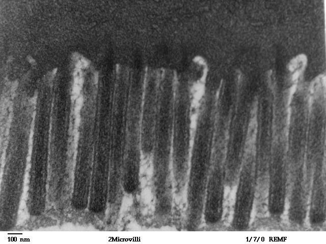 Het DPP4 enzym is een veelzijdig enzym dat voornamelijk wordt aangemaakt in de alvleesklier. Het vormt een belangrijke factor bij het herstel van een leaky