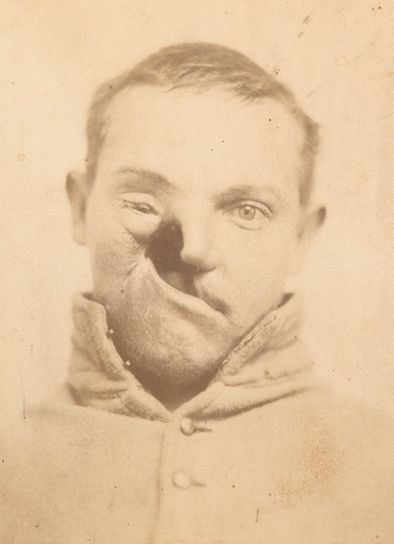 Union soldier Carlton Burgan of Maryland's Purnell Legion, whose upper maxilla bones were destroyed by mercury poisoning from a cold drug called calomel (1862). You can tell he was a very handsome man.