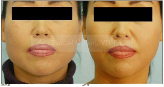 Dr Rachel Ho | A Guide to a Slimmer V Face: Jaw Reduction ...