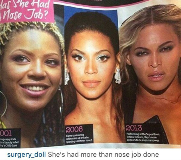WOW! All These CELEB Plastic Surgery Pics Just Got EXPOSED!