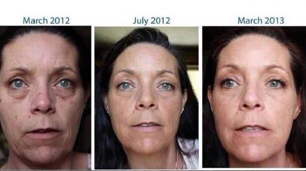 Great results from Rodan and Fields