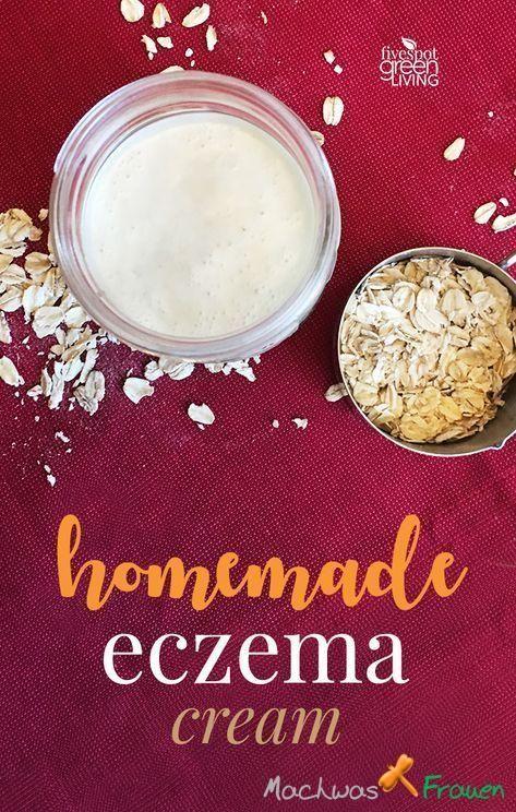 Hausgemachte Ekzemcreme Rezept für trockene Winterhaut –  Ekzem – Color Photo P…