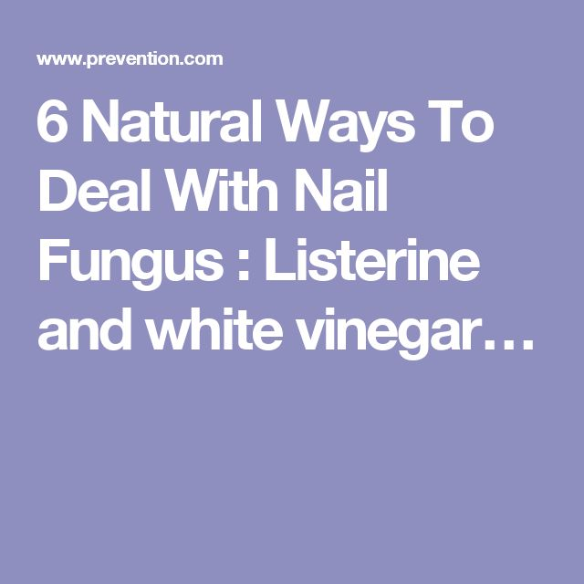 6 Natural Ways To Deal With Nail Fungus : Listerine and white vinegar…