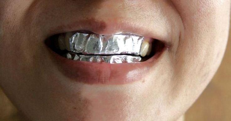 Albirea dinților acasă te scapă atunci când ai nevoie să obții urgent un zâmbet de vedetă, dar nu ai timp să mergi la dentist. Zâmbetul frumos oferă bună dispoziție și încredere în sine. Astăzi vă oferim o metodă de albire a dinților, care se realizează cu ajutorul unei simple folii alimentare din aluminiu. Oricum, esterecomandabil să nuapelați prea des laaceastă procedură, cu toate acestea trebuie remarcat faptul că efectul său este impresionant! Albirea dinților în condiții casnice…