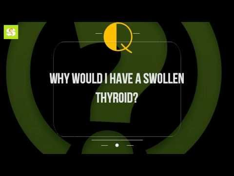 Why Would I Have A Swollen Thyroid? - WATCH VIDEO HERE -> http://bestcancer.solutions/why-would-i-have-a-swollen-thyroid    *** can thyroid cancer cause weight gain ***   Feb 2016 sometimes, the pain can spread (radiate) to jaw or ears. Common thyroid disorders healthlinegoitre (thyroid swelling) what are the causes of one side a becoming enlarged swollen thyroid? Thyroid cancer symptoms endocrineweb. Large...