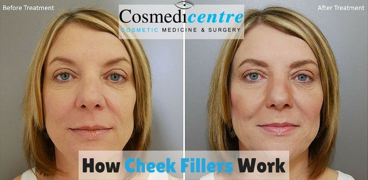 Cheek fillers are becoming more and more popular nowadays. You get your cheeks rejuvenated quickly and easily without any surgical invasion. Learn more how cheek fillers work in our new blog post.  https://cosmedicentre.com/11p  #CheekEnhancement #CheekFillers #DermalFillers #Cosmedicentre #Beauty