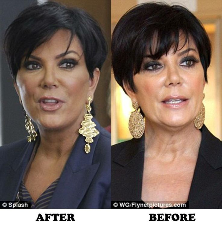 Celebrity Kris Jenner Before And After Plastic Surgery - http://plasticsurgeryclass.com/celebrity-kris-jenner-before-and-after-plastic-surgery/?Pinterest