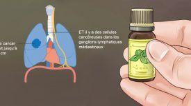 La vérité sur le cancer et les huiles essentielles: ce qu'aucun oncologue ne vous dira