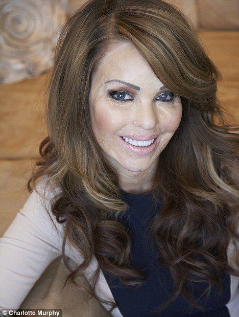 Katie Piper 18 November 2012