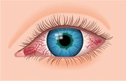 Did you know there are over 15 different causes of red eyes? Click here to learn about causes and treatments for red or bloodshot eyes - AllAboutVision.com