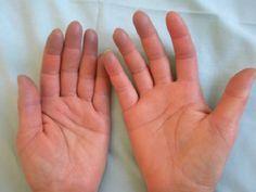 Le mani e i piedi freddi sono il tipico campanello d'allarme. È il sintomo della cosiddetta ''Sindrome di Raynaud'', una malattia che colpisce soprattutto le donne dai 16 ai 40 anni. Ecco i sintomi e come si arriva alla diagnosi