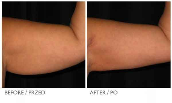 Arm liposuction results 12 – Liposuction before and after