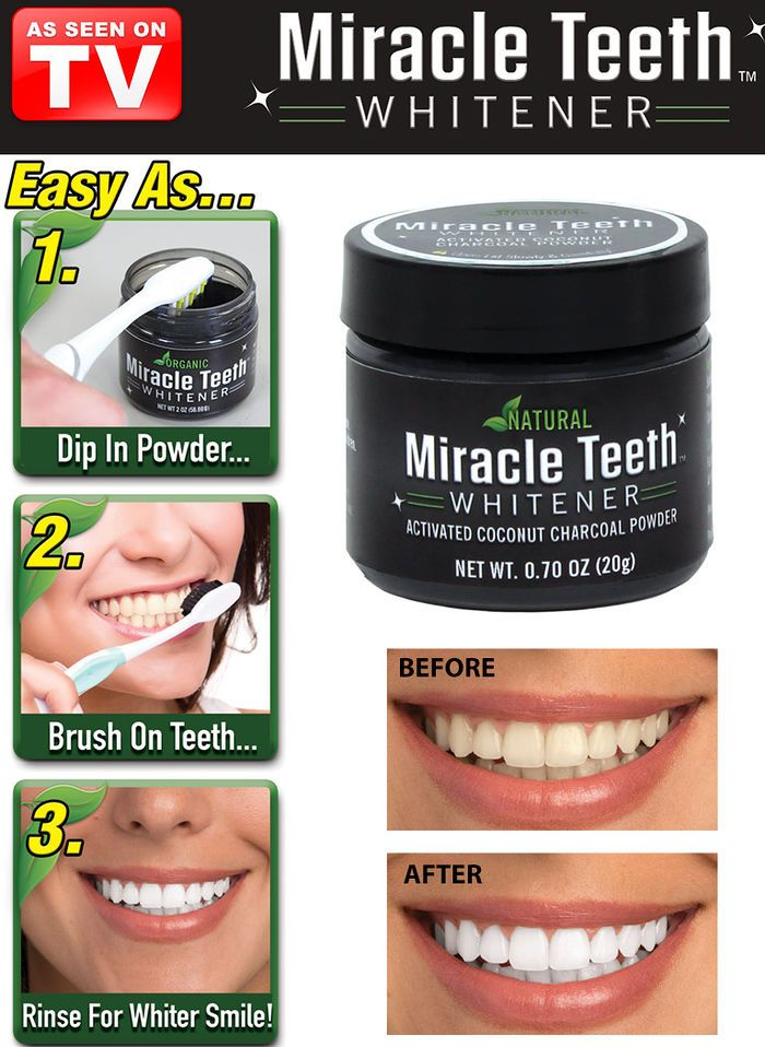 Miracle Teeth Whitener White Teeth Teeth Whitening Whitening