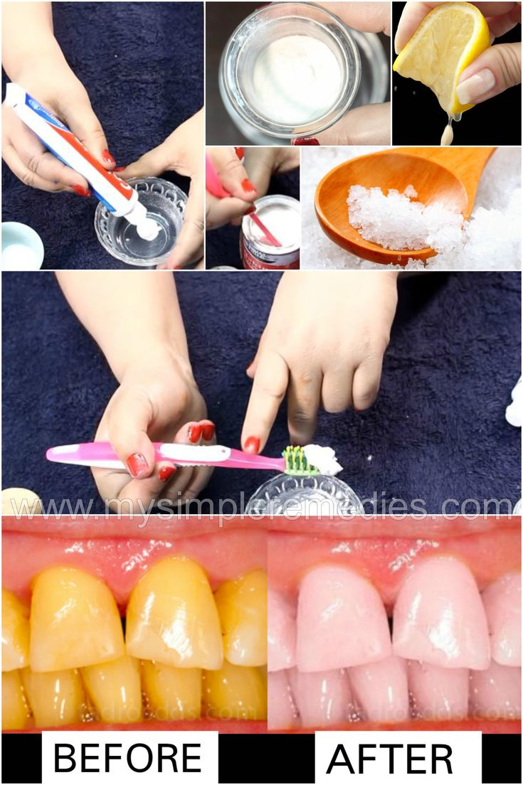 Home Remedies To Whiten Your Teeth Instantly - Teeth Whitening Remedy - Teeth Whitening At Home!
